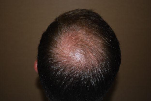 重振雄風有捷徑,脫髮成因大揭秘!認識脫髮治療-植髮