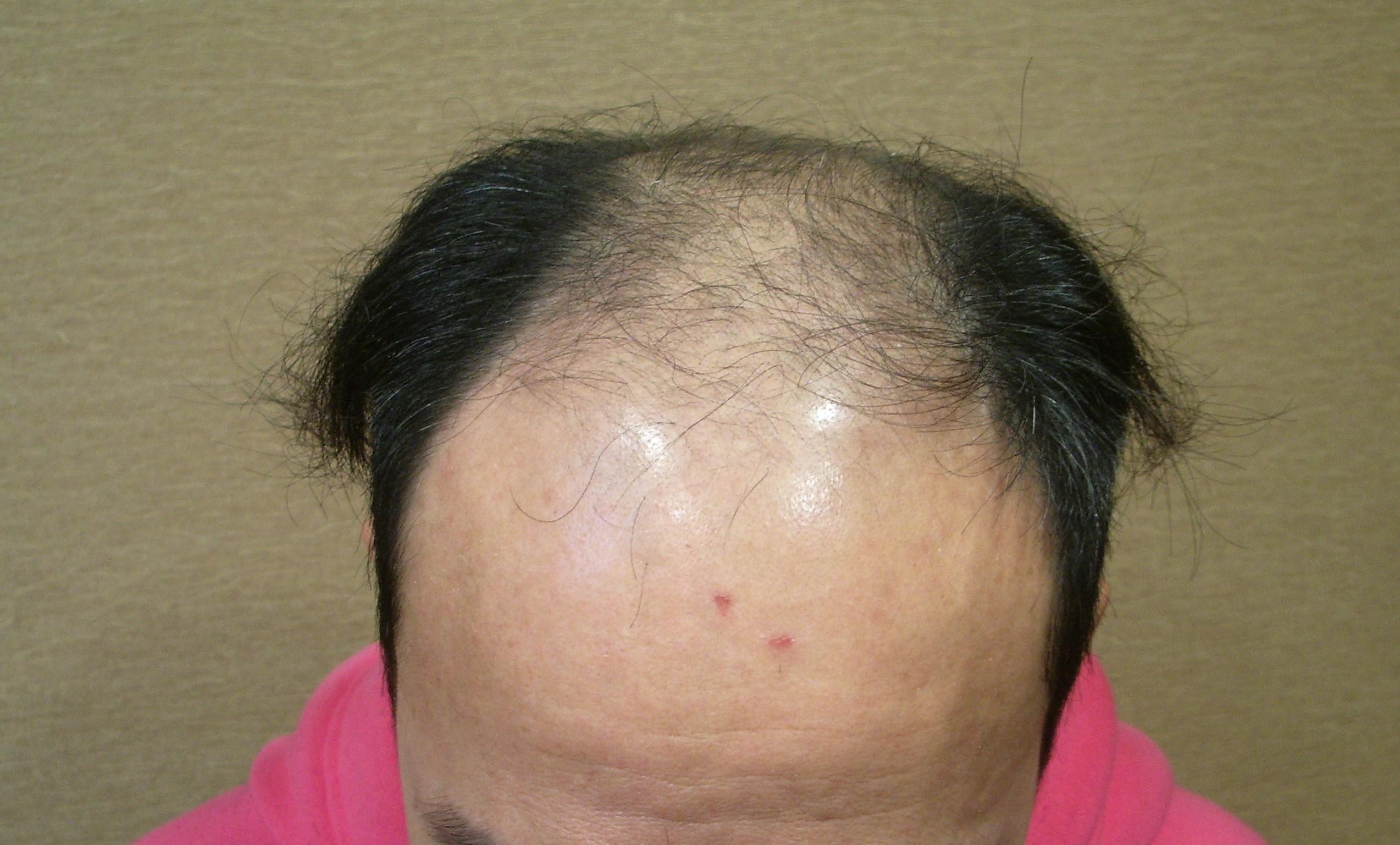 禿頭駛乜驚?!淺談雄性禿原因及治療