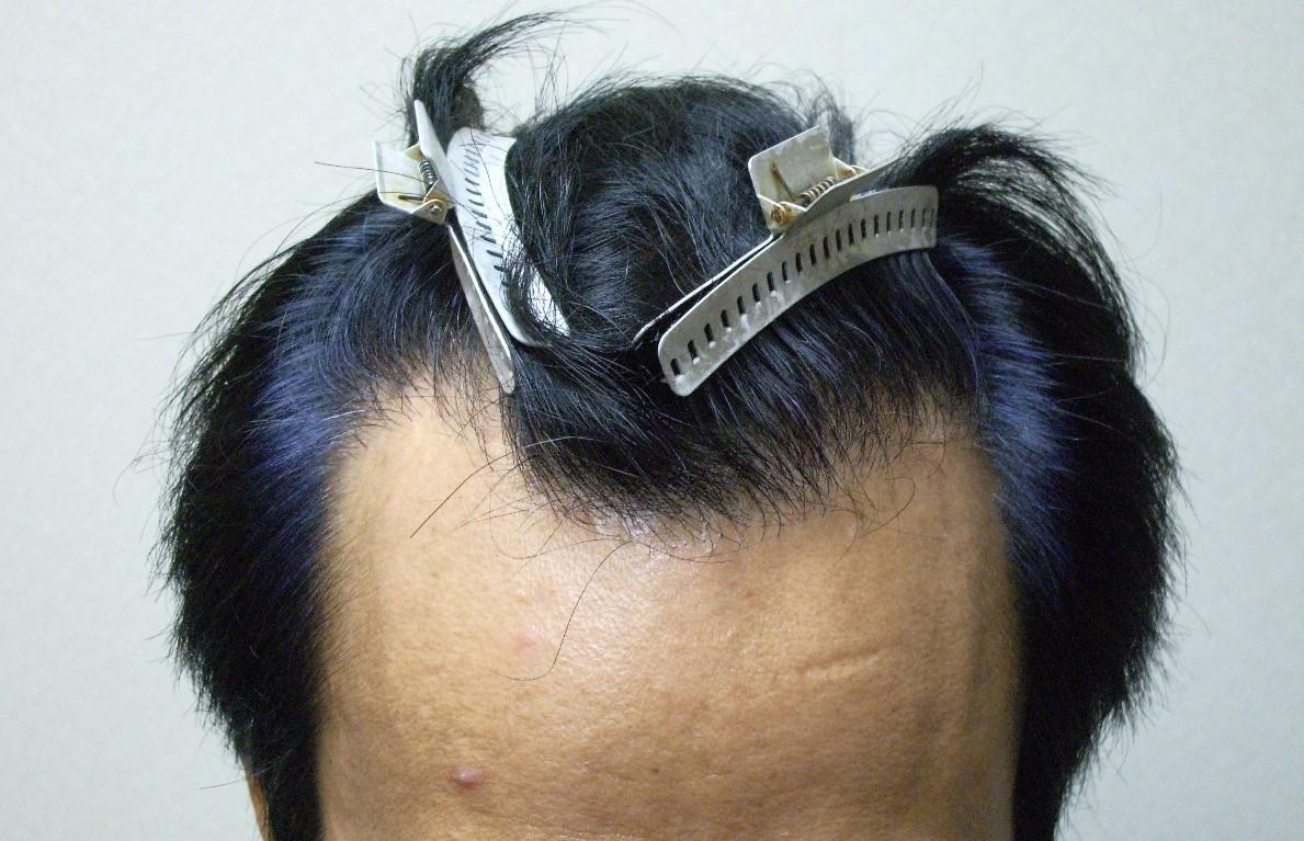 這個年代還信有增髮方法?脫髮唯有植髮