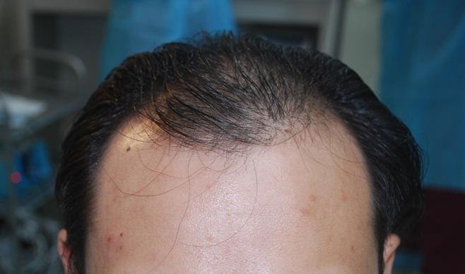 【拆解植髮】前額脫髮不用怕@Artas植髮提升毛囊存活率