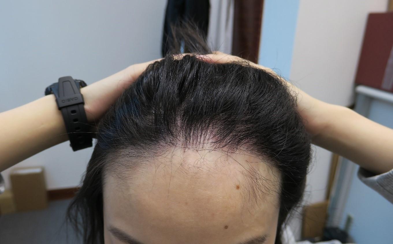 【女士植髮?】女士脫髮一樣有救!