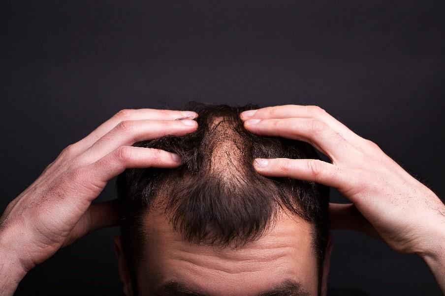 【脫髮問題】甩頭髮好煩惱?植髮是辦法