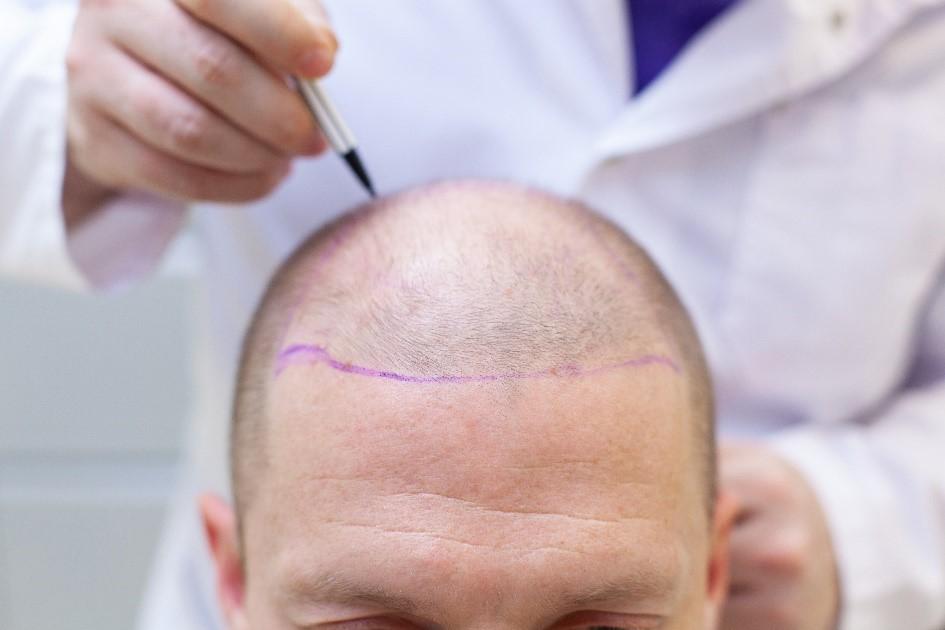 【植髮原理】Artas植髮與FUE植髮之迷