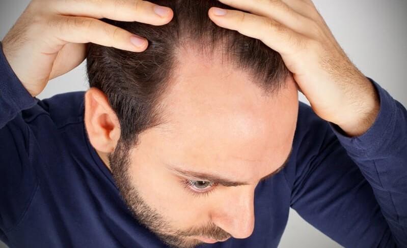 男性脫髮,有冇防脫髮食療?