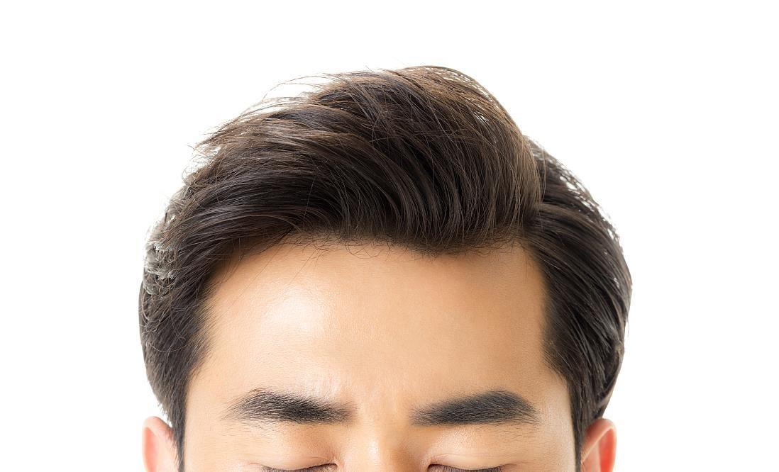 【植髮效果最長久?】哪一種生髮方法最有效?