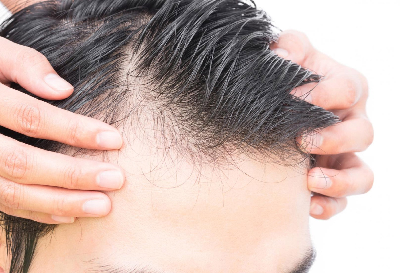 【男士脫髮】認識脫髮先兆及成因 做好脫髮改善!