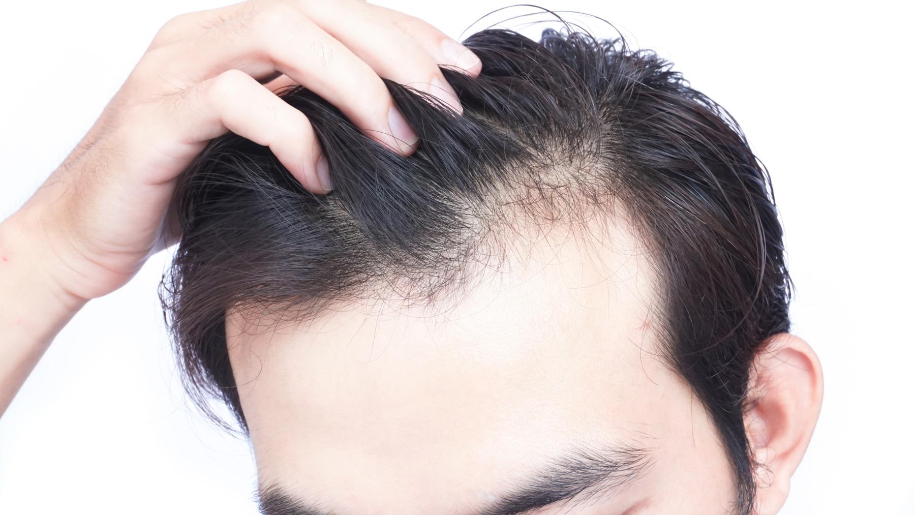 【脫髮治療】不同脫髮情況應該如何進行治療?